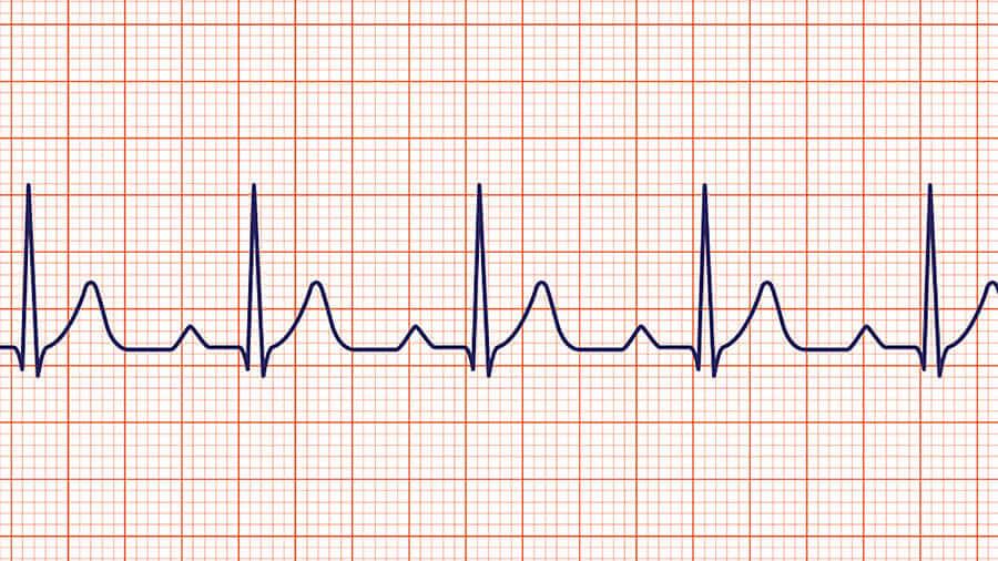 pratique de la cohérence cardiaque